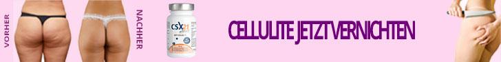 CSX21 - Anti Cellulite